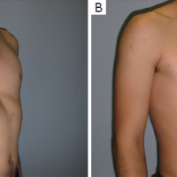 Pectus excavatum repair from a plastic surgeon's perspective