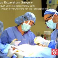 Live Pectus Surgery Aug 25, 6pm EDT