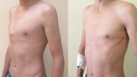 Pioneering chest deformity op carried out at Cardiff hospital