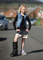 Young girl with pectus excavatum and a broken ankle still finishes her race