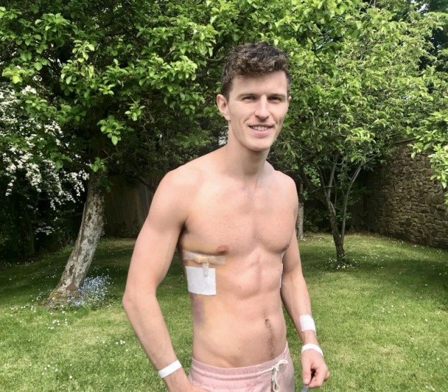 Man with deformed 'caved in' chest is now a Calvin Klein model